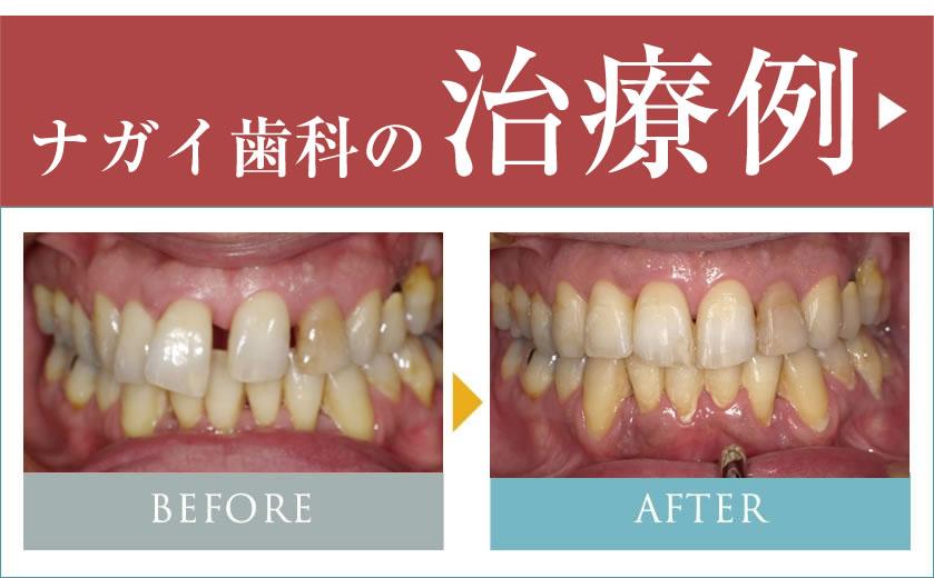 ナガイ歯科の治療例