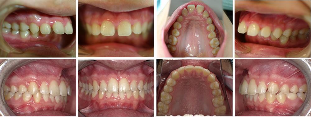 出っ歯(上顎前突)の矯正治療例(10代男性 治療期間3年)