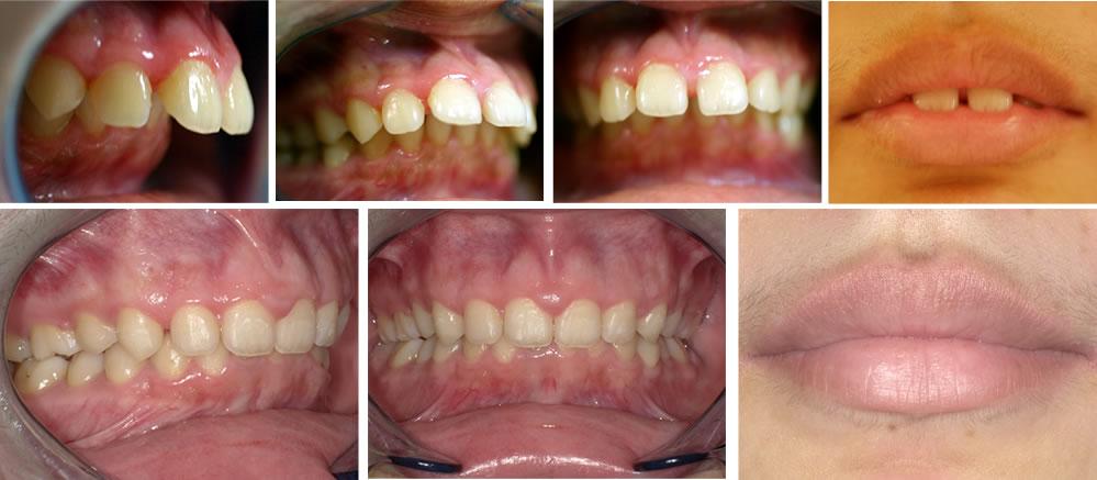 出っ歯(上顎前突)の矯正治療例の治療例