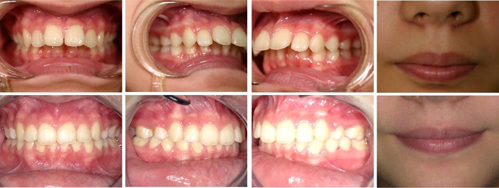 出っ歯(上顎前突)の矯正治療例(13歳女性 治療期間6年)