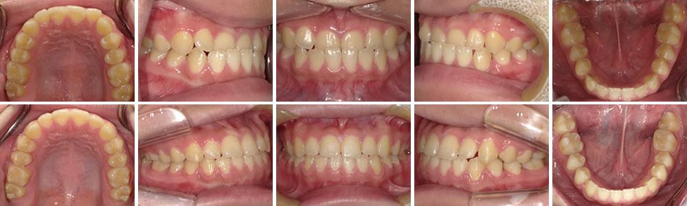 反対咬合(あごがしゃくれた状態)の矯正治療例の治療例