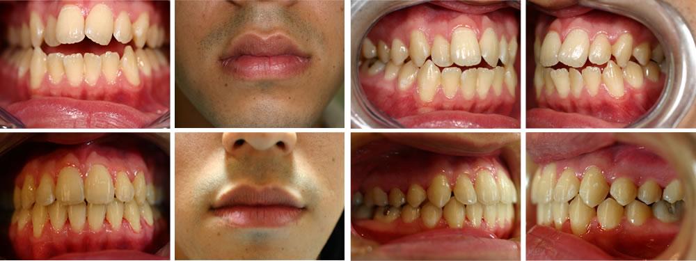 開咬の矯正治療例(18歳男性 治療期間2年)