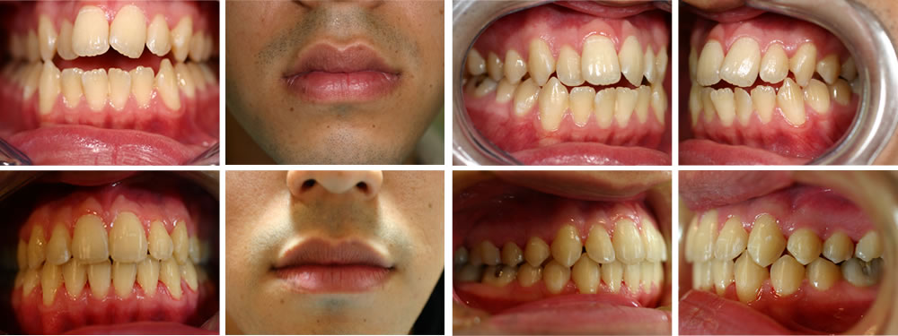 開咬(前歯が咬まない)の治療例