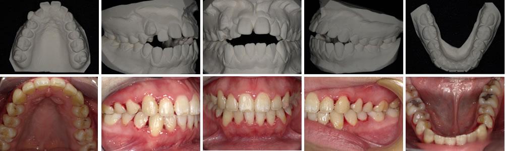 開咬の矯正治療例(15歳女性 治療期間3年)