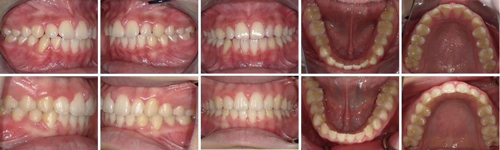 開咬の矯正治療例(11歳女性 治療期間1年9ヶ月)