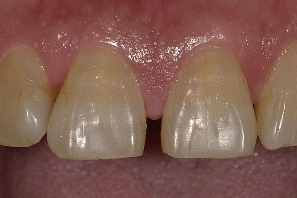 すきっ歯修復