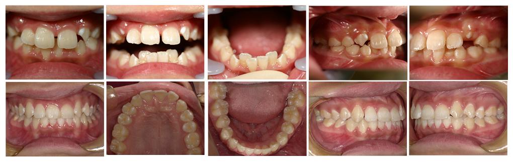 子どもの叢生・八重歯の矯正治療例(9歳女子 治療期間5年)