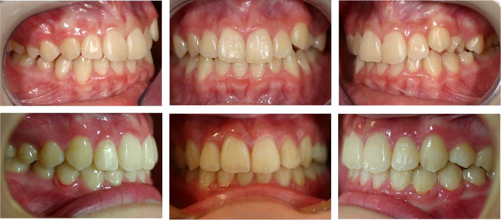 子どもの叢生・八重歯の矯正治療例(12歳女子 治療期間1年9ヶ月)