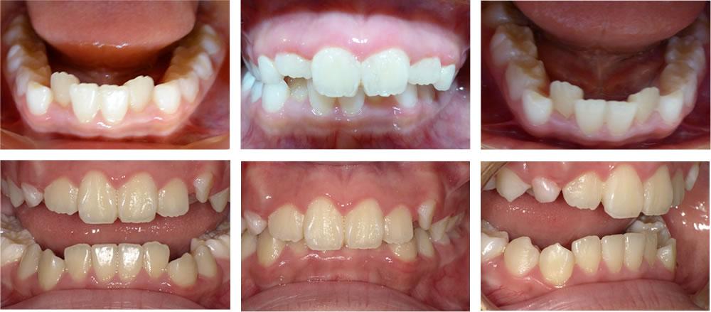子どもの叢生・八重歯の矯正治療例(8歳女子 治療期間12ヶ月)