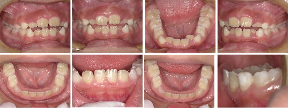 子供の叢生・八重歯の矯正治療例(8歳女子 治療期間12ヶ月)