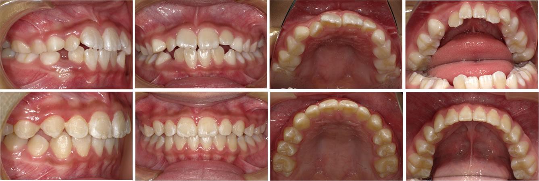 子供の叢生・八重歯の矯正治療例(9歳女子 治療期間1年半)