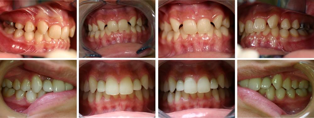 すきっ歯(先天性欠損)の矯正治療例(14歳女性 治療期間3年)