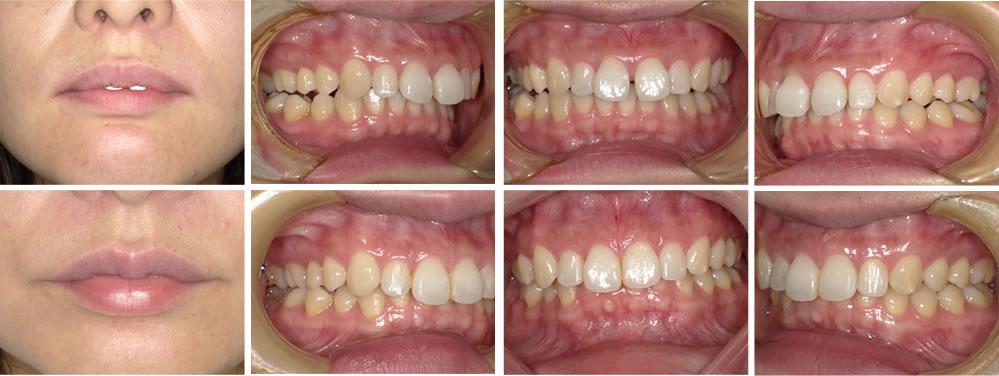 すきっ歯(空隙歯列)の矯正治療例(20代女性 治療期間約3ヶ月)
