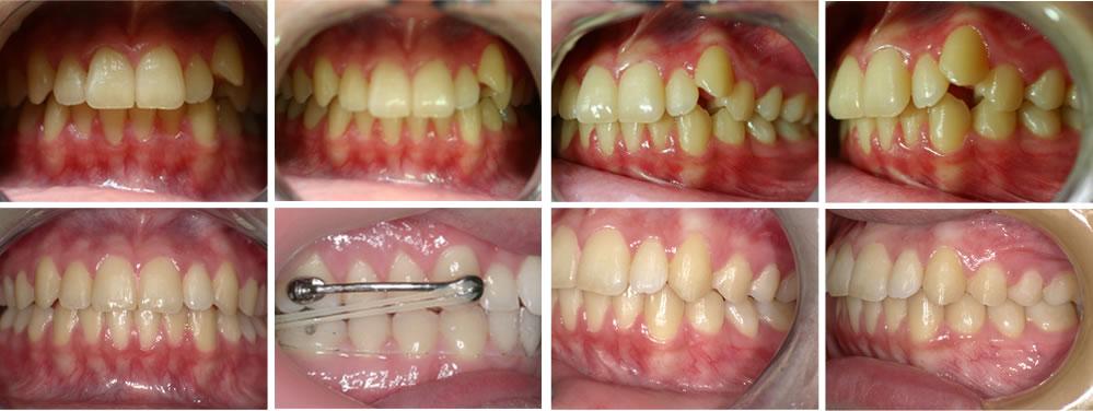 叢生・八重歯の矯正治療例(20代女性 治療期間3年)