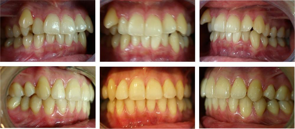 叢生・八重歯の矯正治療例(20代女性 治療期間4年)