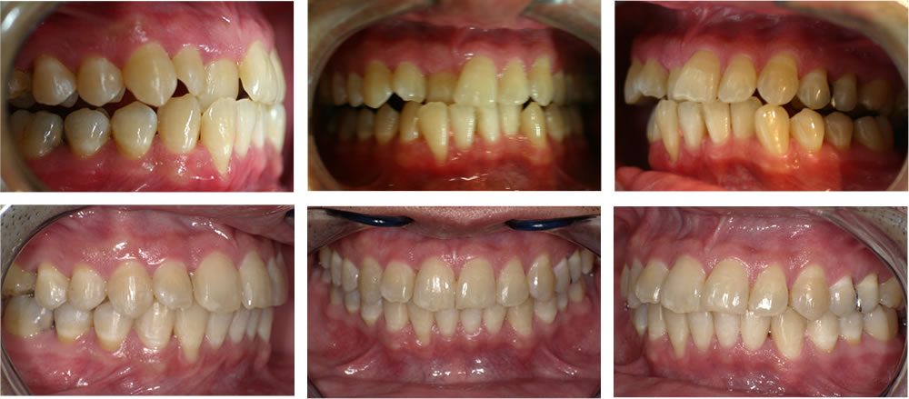 叢生・八重歯の矯正治療例(33歳男性 治療期間2年5か月)