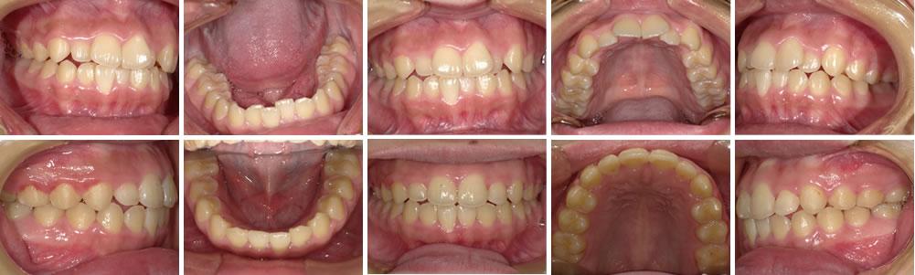 叢生・八重歯の矯正治療例(15歳女性 治療期間2年)