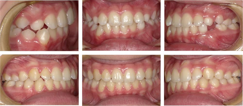 叢生・八重歯の矯正治療例(10歳女性 治療期間2年)
