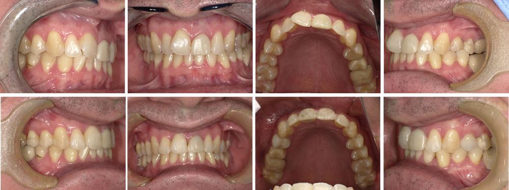前歯の部分矯正治療例(48歳男性 治療期間10ヶ月)