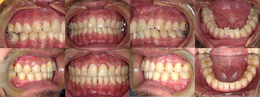 叢生・八重歯の矯正治療例(30代男性 治療期間2年半)