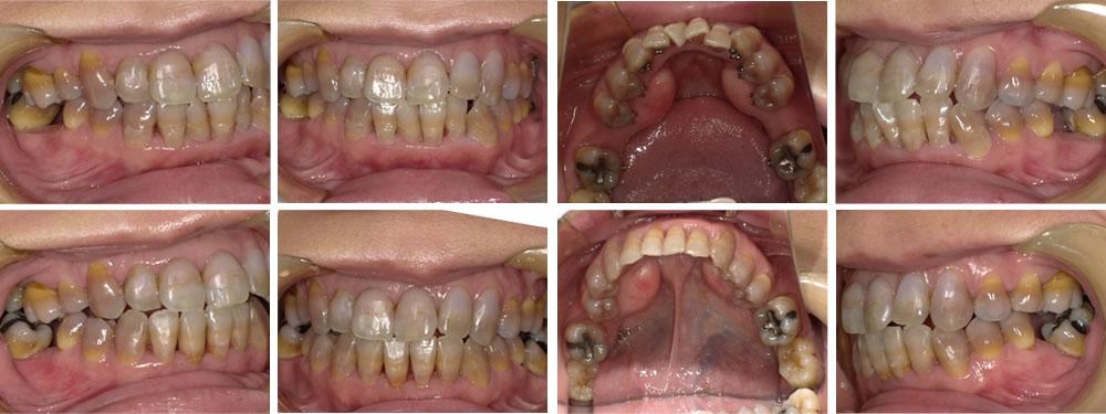 下顎の叢生の矯正治療例(40代女性 治療期間12ヶ月)