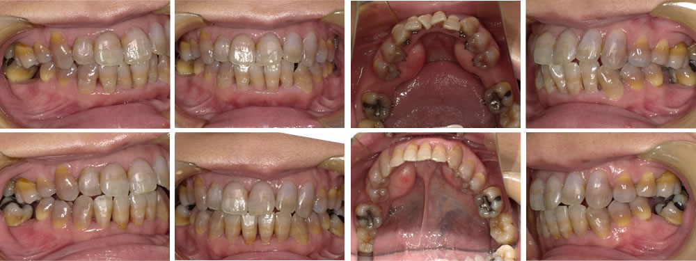 下顎の叢生の矯正治療例の治療例
