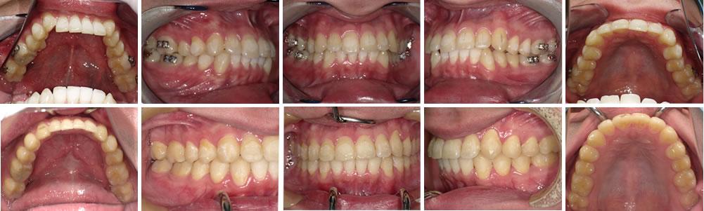 叢生・八重歯の矯正治療例(30代男性 治療期間3年5か月)
