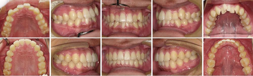 前歯の叢生・上顎前突(軽度)の治療例