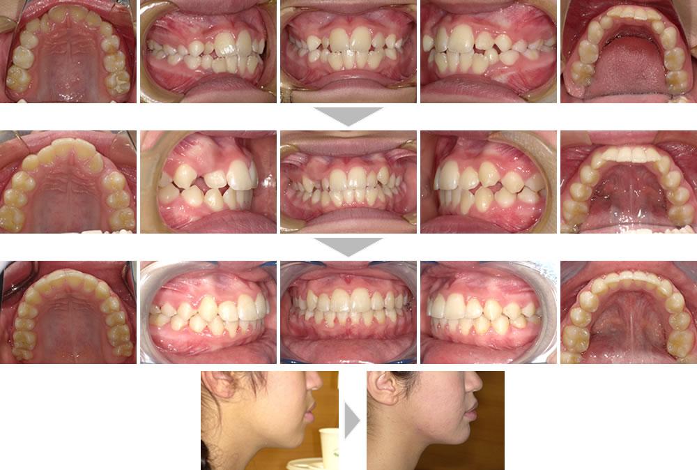 子どもの叢生・八重歯の矯正治療例