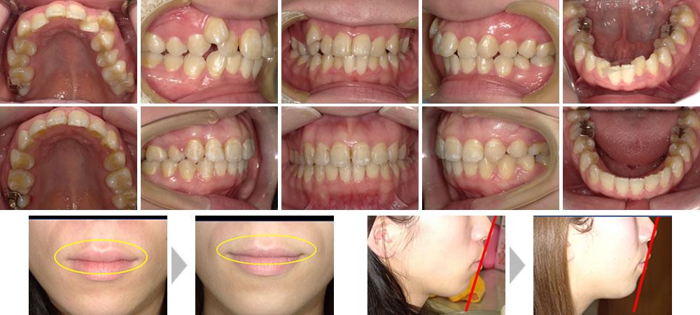 叢生・八重歯の治療例