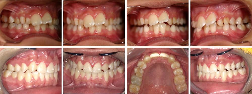 子どもの出っ歯(上顎前突)の矯正治療例の治療例