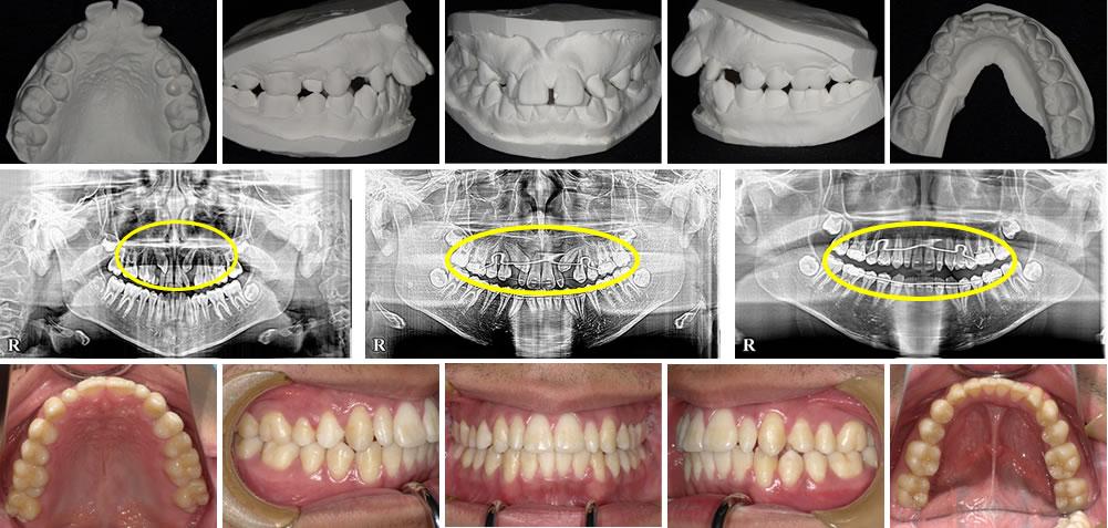 子どもの出っ歯の矯正治療例(14歳男子 治療期間4年)