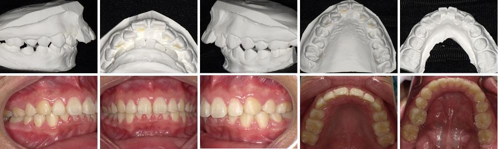 子どもの出っ歯の矯正治療例(11歳男子 治療期間3年)