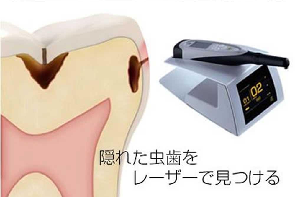 ダイアグノデント(虫歯検知器)